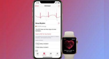 Всё, что вы хотели знать об ЭКГ в умных часах Apple Watch